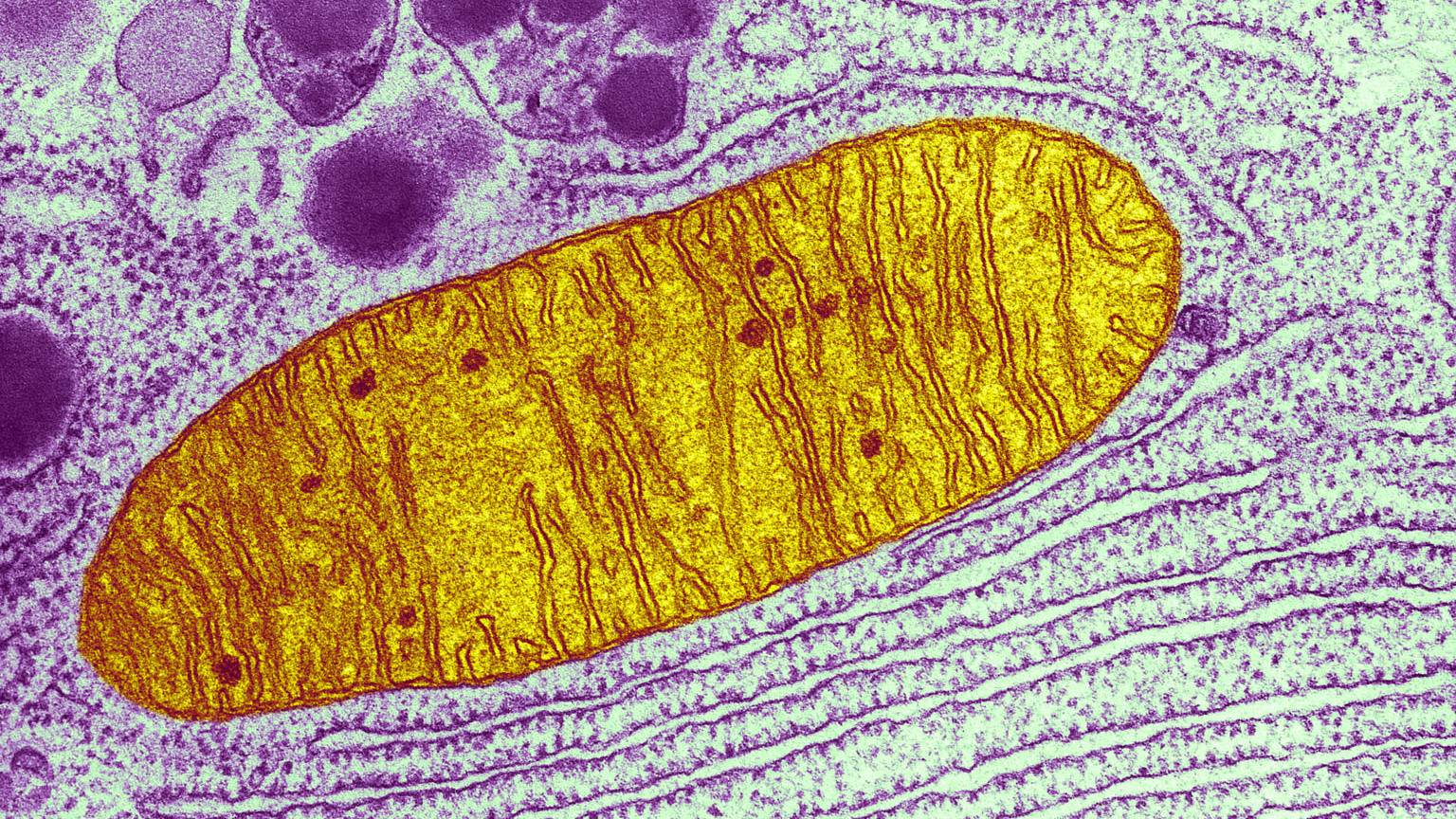 This micrograph shows a single mitochondrion, one of many little energy factories inside a cell.